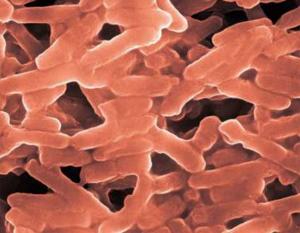 Legionela pneumophila causante de la legionelosis.  Se encuentra en torres de refrigeración y redes de agua.