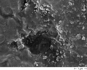 15.03.12.  AK unter dem Elektromicroskop_1S-9-34